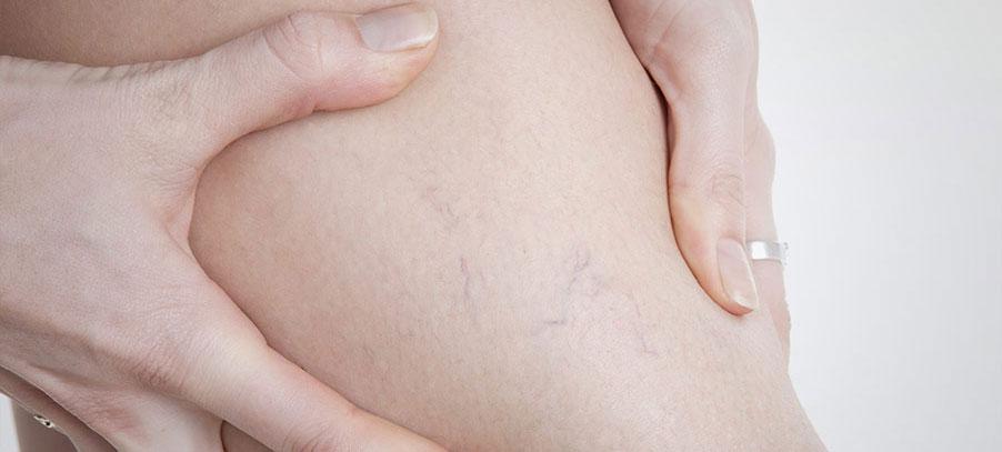 La varicosité sur les périnées à la grossesse